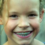 Total Orthodontics Greenwood Village CO Early Treatment