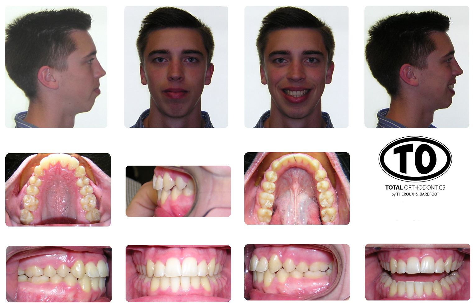 orthodontics for orthognathic surgery Braces in preparation for surgery the upper and lower teeth must be aligned within their respective jaws as to allow the teeth to fit together at the time of surgery in other words, the upper teeth are idealized in the upper jaw and the lower teeth are idealized in the lower jaw.