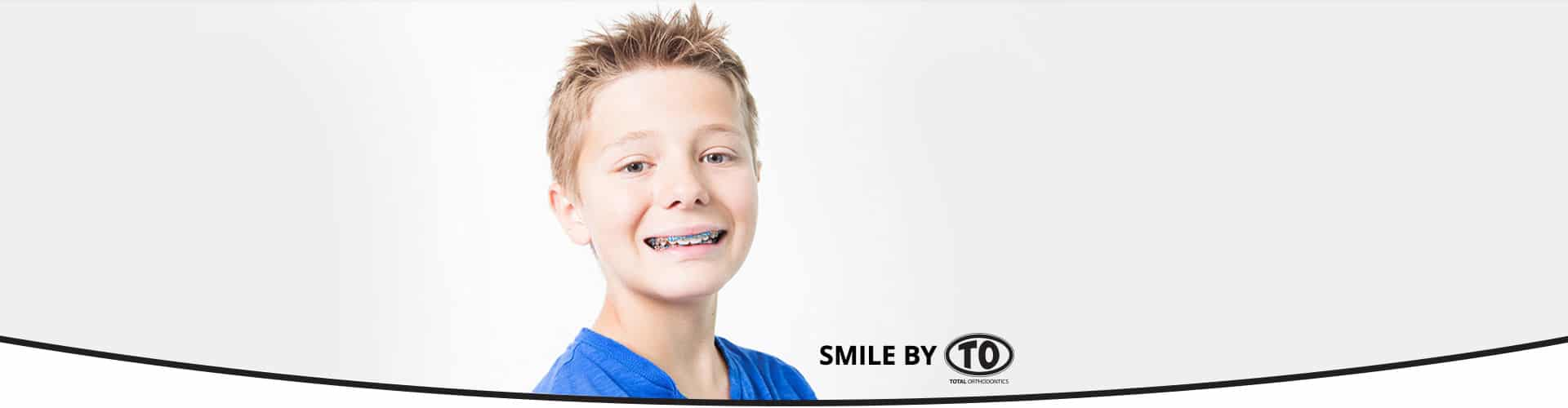 Male Patient Smile by TO at Total Orthodontics inLone Tree and Greenwood Village CO