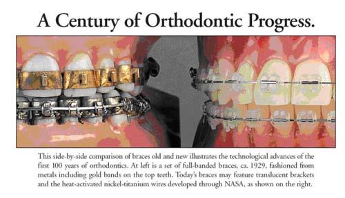 orthodontics timeline lone tree co