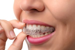 Invisalign for the Holidays Greenwood Village CO