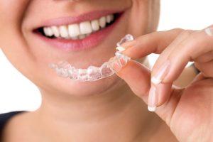 Orthodontic Retainers Lone Tree CO